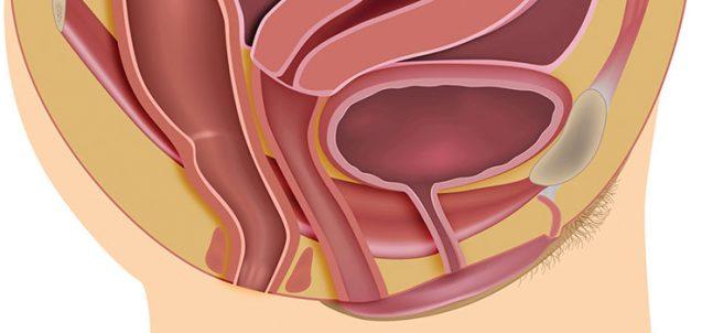 WH0516-Pelvic-Organ-Prolapse-Basics
