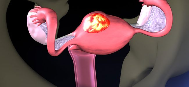 Medical Therapy for Uterine Fibroids