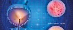 interstitial cystitis algorithm simplify diagnosis chronic urinary symptoms