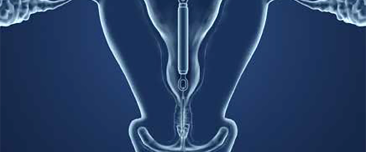 iud insertion removal